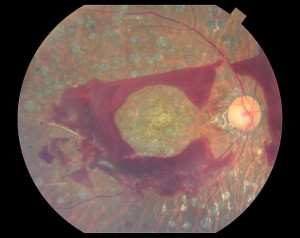 Proliferative diabetic retinopathy with preretinal hemorrhage